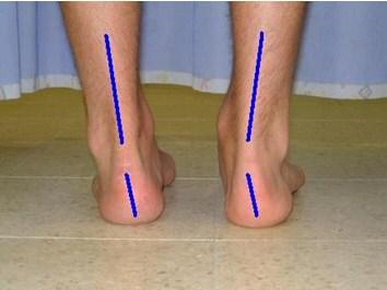 אסימטריה ברגליים