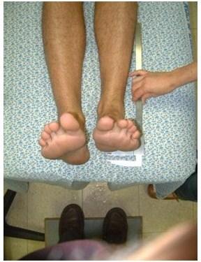 הבדל באורך רגליים - מרכז איימקס