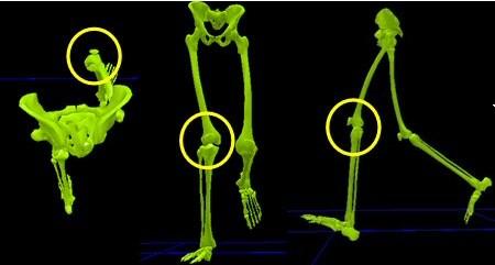 טיפולי פיזיותרפיה לברכיים