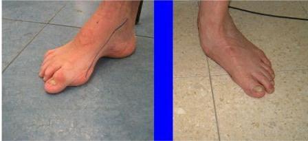 טיפול בכאבים ברגליים