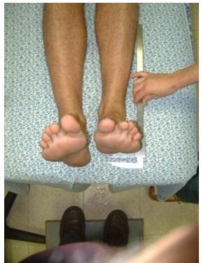 הבדל באורך רגליים - טיפול ואבחנה