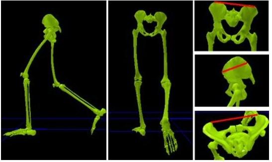 שיפור טכניקת ריצה- אבחון באיימקס