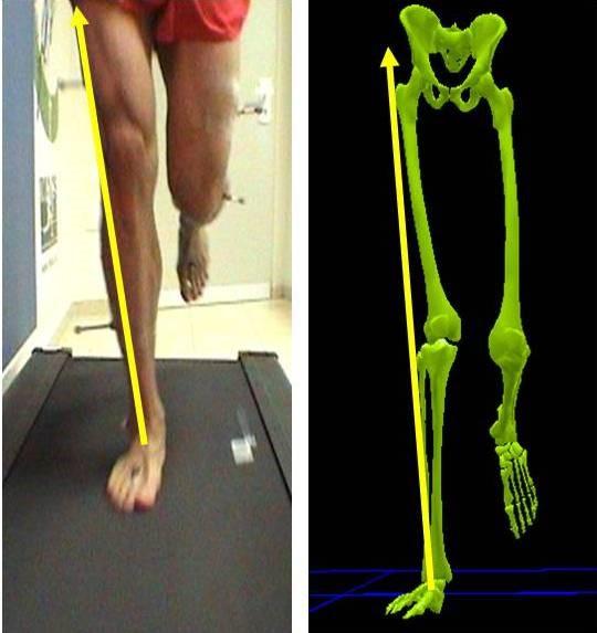 פיזיותרפיה לברך במרכז איימקס