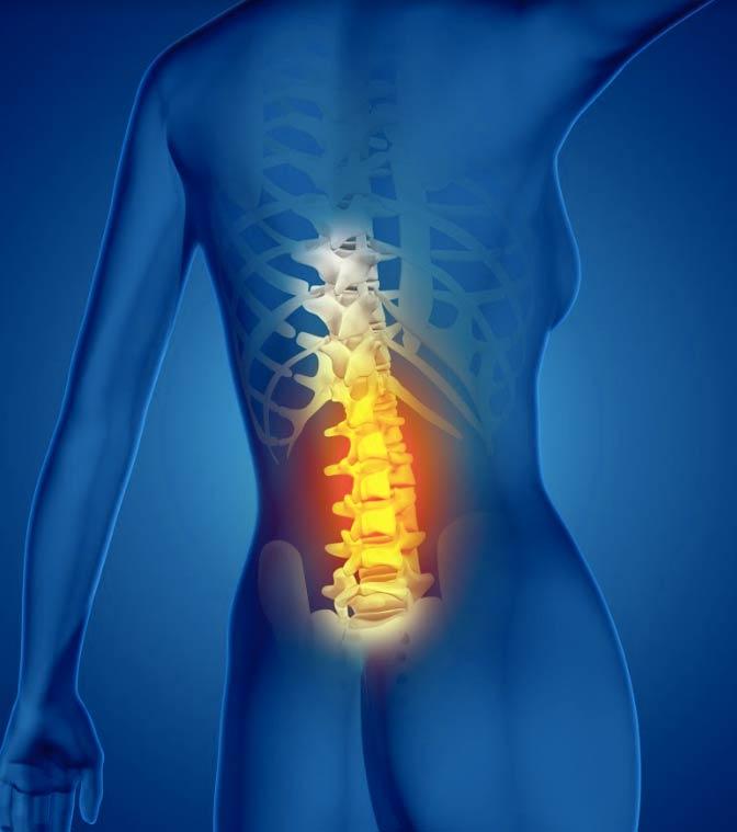 פיזיותרפיה לכאבי גב תחתון