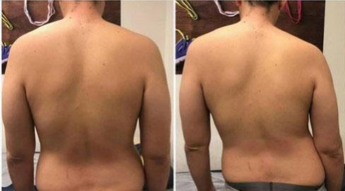 פריצת דיסק טיפול מקנזי באיימקס
