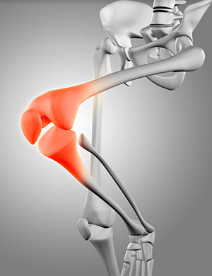 כאב פטלופמורלי - פיזיותרפיה לברך