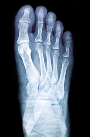 כאבים בכף הרגל - פיזיותרפיה באיימקס