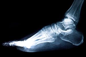 פיזיותרפיה כף רגל