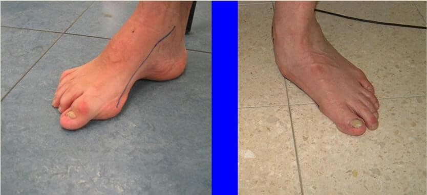 התאמת נעלי ריצה באיימקס