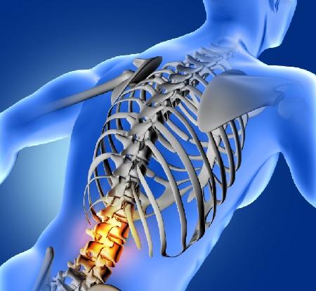 הדמית כאב גב מקרין לרגל