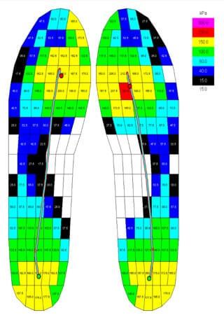 איימקס מדרס ביומכאני - בדיקת לחצים