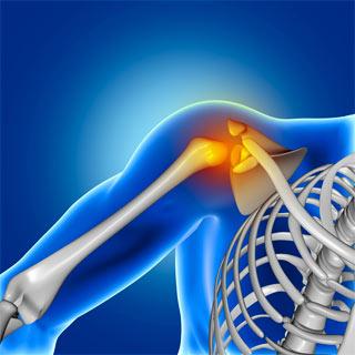 אבחון של דלקת גידים בכתף