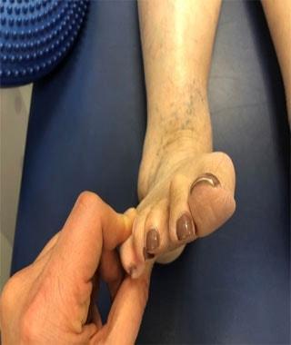 טיפול בדלקת בכף הרגל