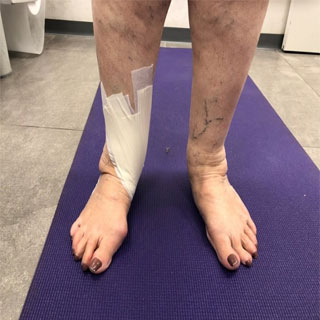 Tibialis Posterior Dysfunction - y טיפול