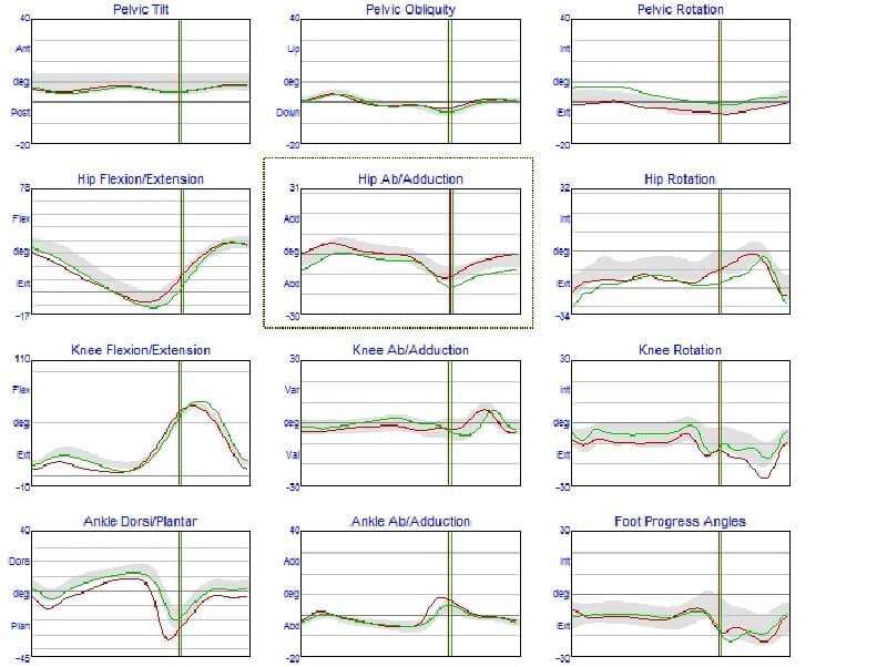 בדיקות התנועה - הטכנולוגיה של איימקס