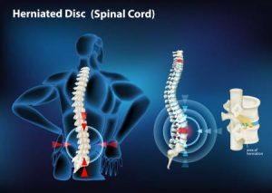 טיפולי פיזיותרפיה לפריצת דיסק בגב